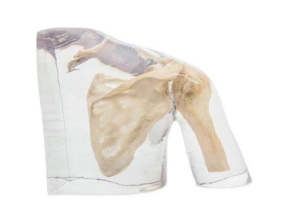 X-Ray Phantom Shoulder, Transparent