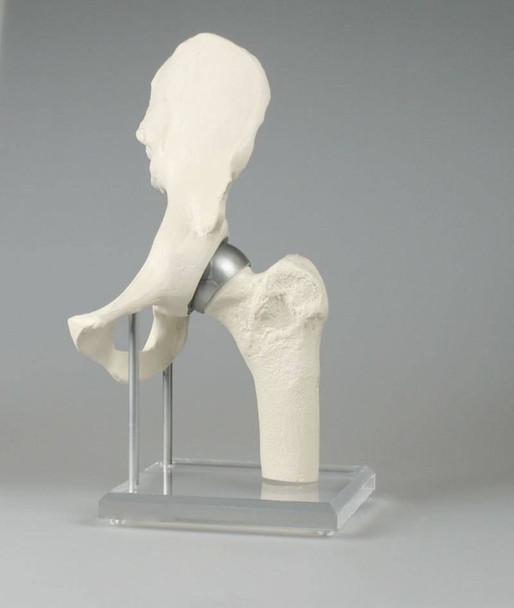 Hip Joint with Resurfacing Implant