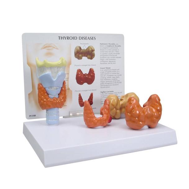 Thyroid Disease Anatomy Model