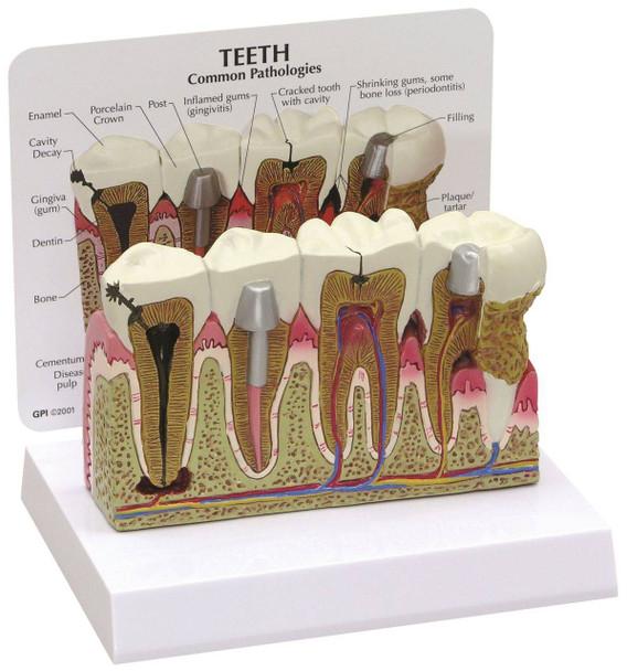 Diseased Teeth and Gums Anatomy Model