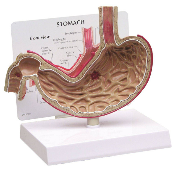 Stomach With Ulcers Anatomy Model
