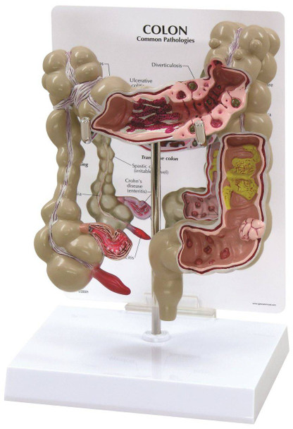 Colon Anatomy Model With Pathologies