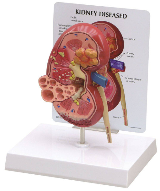Diseased Kidney Anatomy Model