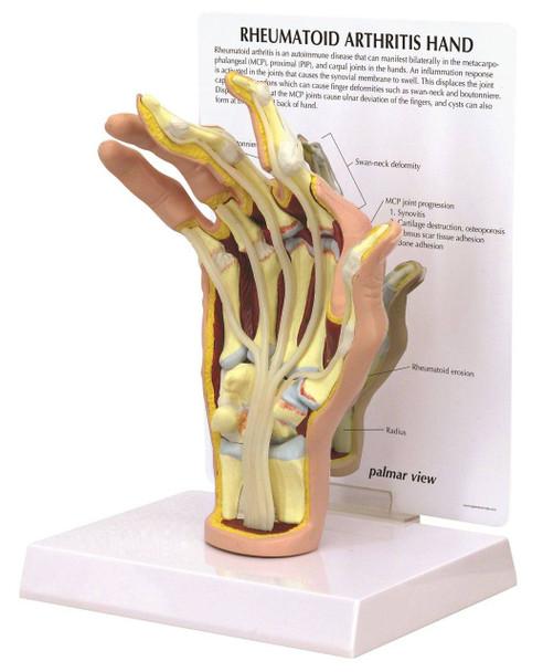 Rheumatoid Arthritis Hand Anatomy Model