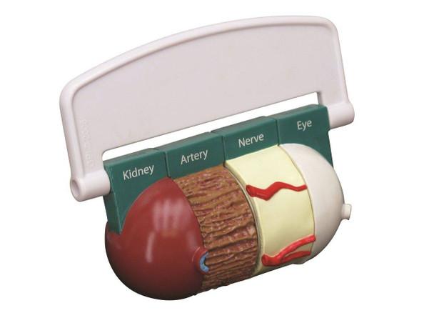 4-Piece Diabetes Anatomy Model