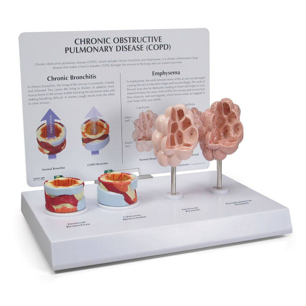 COPD Model with Bronchus and Alveoli