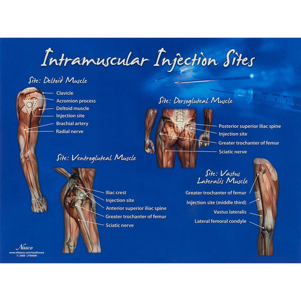 Intramuscular Injection Visual Aid Chart