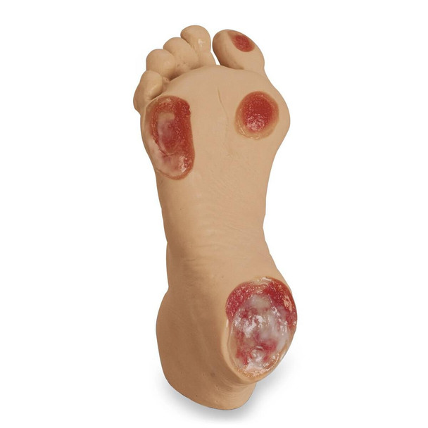 Life/form Elderly Pressure Ulcer Foot - Light