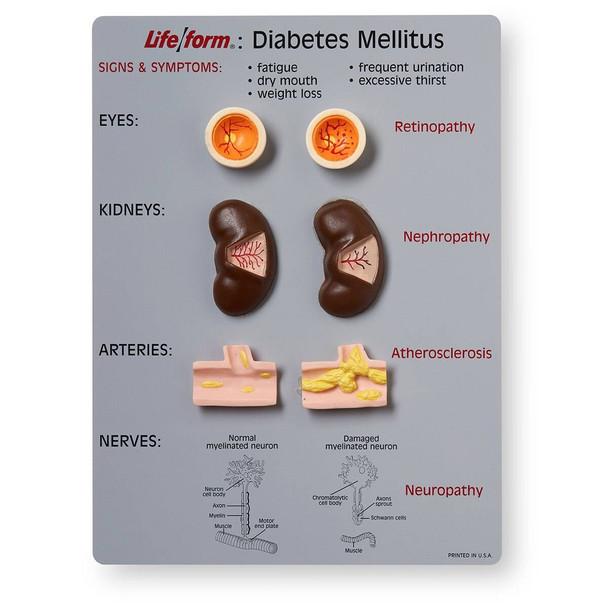Life/form Diabetes Mellitus Teaching Kit