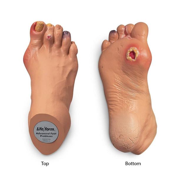 Nasco Advanced Foot Problems