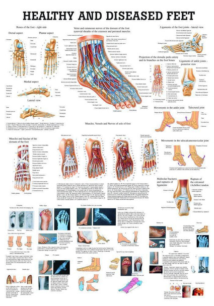 Healthy and Diseased Foot Laminated Anatomy Chart