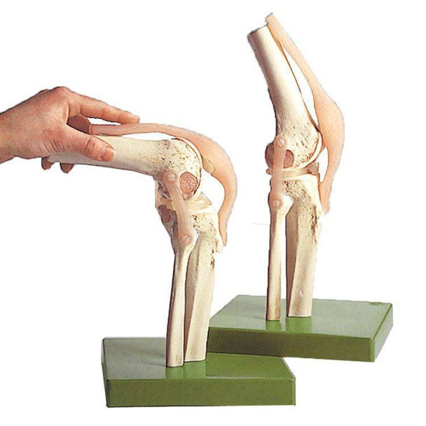 SOMSO Functional Model of the Knee Joint
