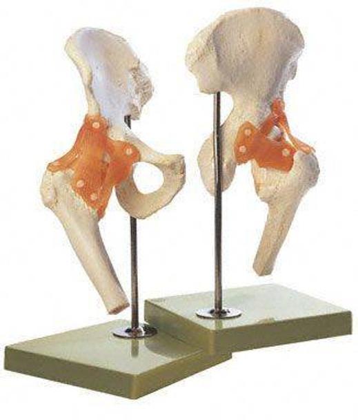 SOMSO Premium Functional Hip Joint Model