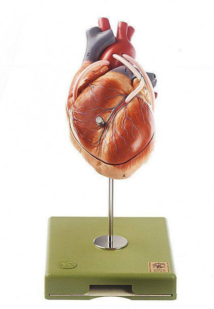 SOMSO Model of the Heart with Aortic Coronary Venous Bypass Vessels