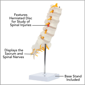 Axis Scientific Lumbar Vertebral Column with Sacrum and Spinal Nerves Anatomy Model Main Features.