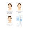 LANBENA face Cream Acne Treatment Gel Acne Cleaning Blackhead Remover Acne Spots Face Acne Scar Skin Care Repair Comedone Pimple