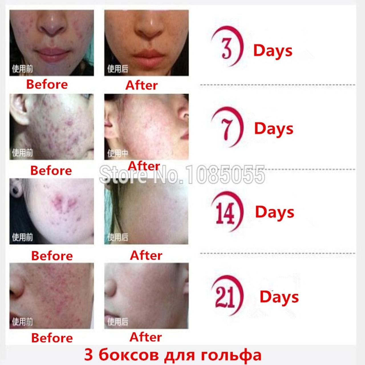 oily skin treatment