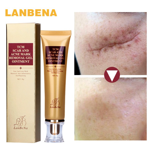 LANBENA Remove Acne Scars Repair Gel Skin Care Red Spots Face Cream Stretch Marks pimple scars Moisturizing Anti-inflammatory
