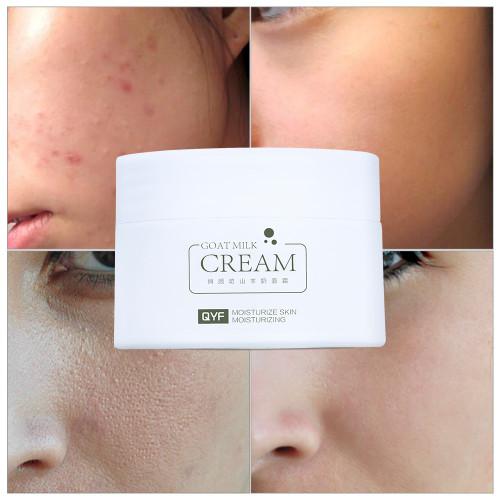 QYF Goat Milk Face Cream Moisturizing Skin Care Essence Anti Wrinkle Anti Aging Acne Treatment Whitening Cream Remove Blackhead