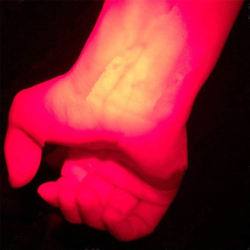 Infrared Vein Imaging Red Light Torch Pediatric Unit Clinicians Nurses Vein Finder -- JDH99