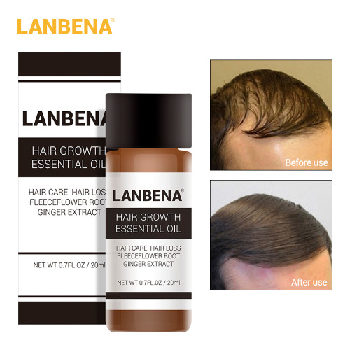 LANBENA 20ml Hair Growth Essence Fast Powerful Hair Care Essential Oil Liquid Treatment Preventing Hair Loss Products for Men