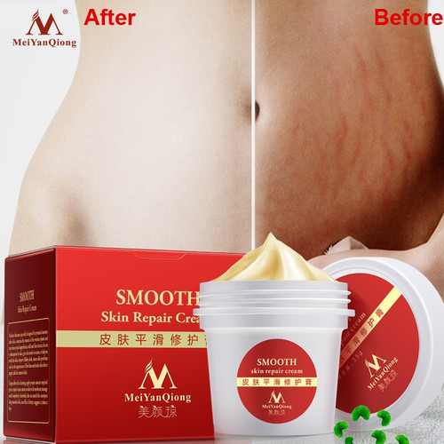Maternity Skin Repair Body Cream for Stretch Marks Scar Removal Remove Scar Care Postpartum Pregnancy Serum Smooth Skin Creams 9