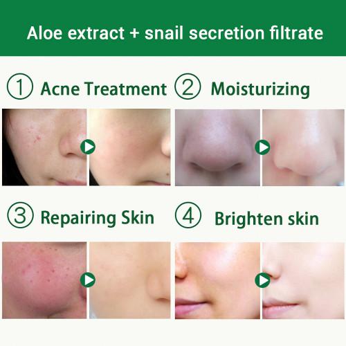 BAIMISS 300g Snail Serum Aloe Vera Gel Face Cream Skin Care Repair Acne Treatment Blackhead Remover Scar Removal Moisturizing