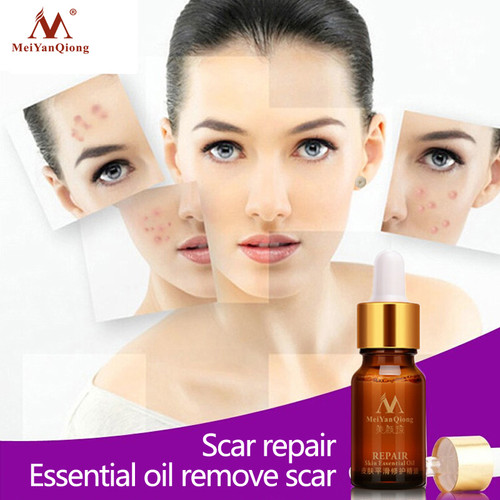 Scar Repair Skin Essential Oil Lavender Essence Skin Care Natural Pure Remove Ance Burn Strentch Marks Scar Removal 10ML