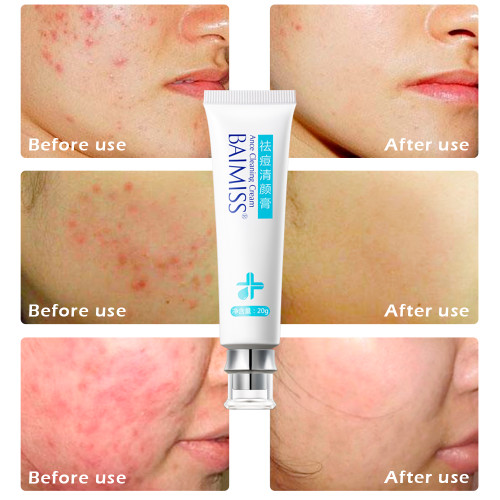 BAIMISS Acne Remover Cream Skin Care Anti Acne Treatment Facial Care Repair Comedone Pimple Quickly Natural Herbal Scar Cream