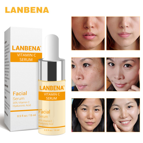 LANBENA Vitamin C Whitening Serum Hyaluronic Acid Face Cream Snail Remover Freckle Speckle Fade Dark Spots Anti-Aging Skin Care