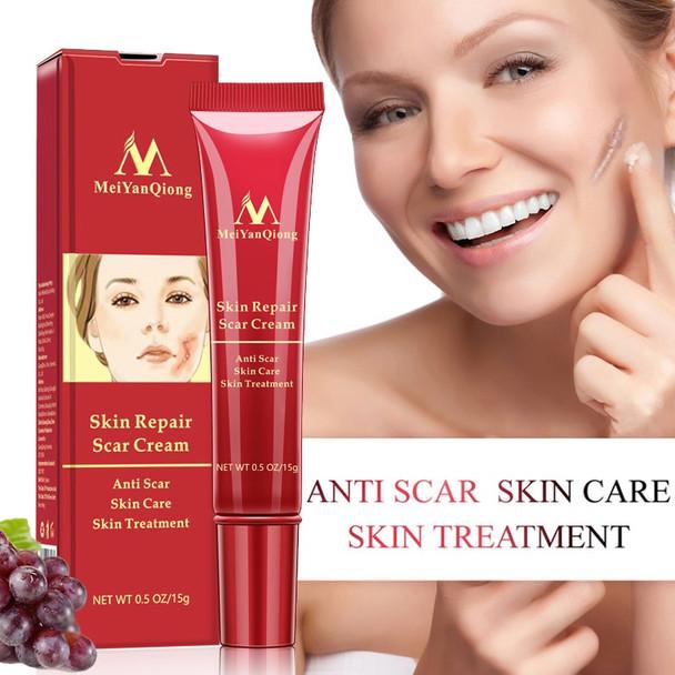 Scar Repair Cream Skin Care Natural Acne Remove Burn Stretch Marks Scar Removal Facial Body Skin Care Repair Cream