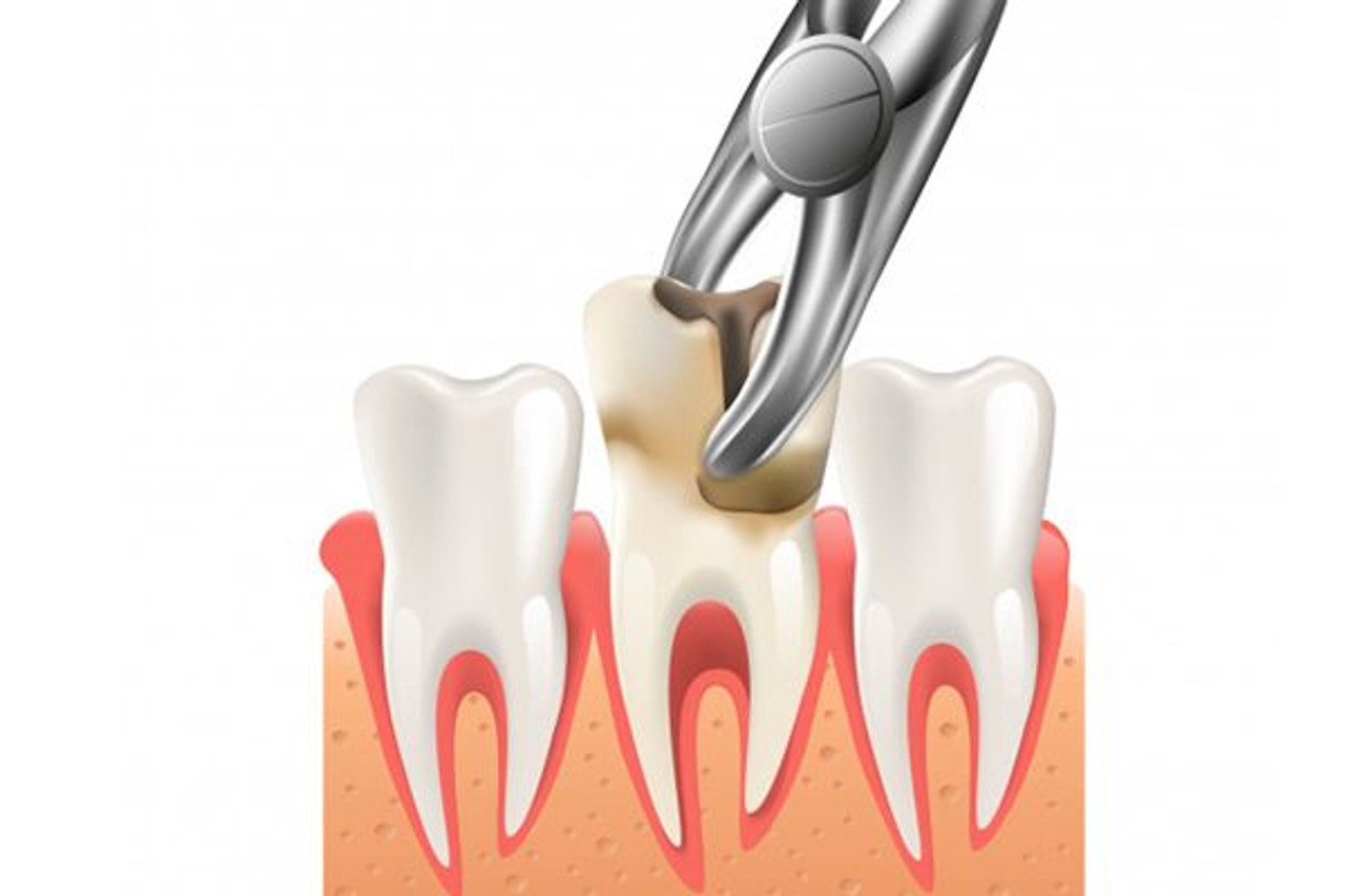 Teeth Extraction Simple Surgical Ann Arbor Waterford Michigan Dental House