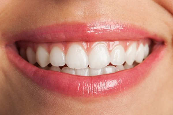 Direct Teeth Bonding