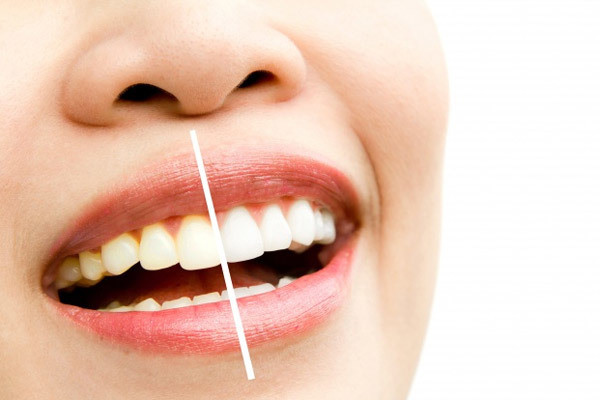 Teeth Whitening by Dentists in Ann Arbor and Ypsilanti (ypsi), Washtenaw, Michigan at Dental House