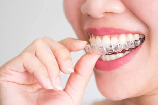 Invisalign® (Clear Aligners)