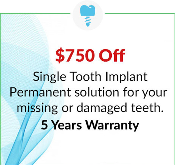 $750 Off Single Tooth Implant - 5 Years Warranty