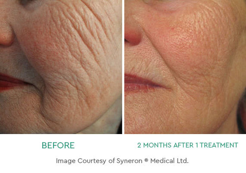Radio Frequency Skin Tightening (deposit)