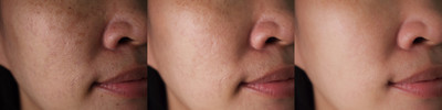 Asian Skin and Brown Spots
