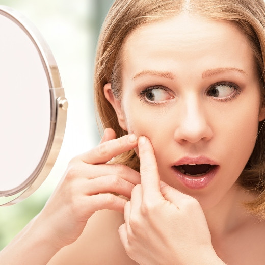 6 Habits to Break if You Want to Get Rid of Acne for Good