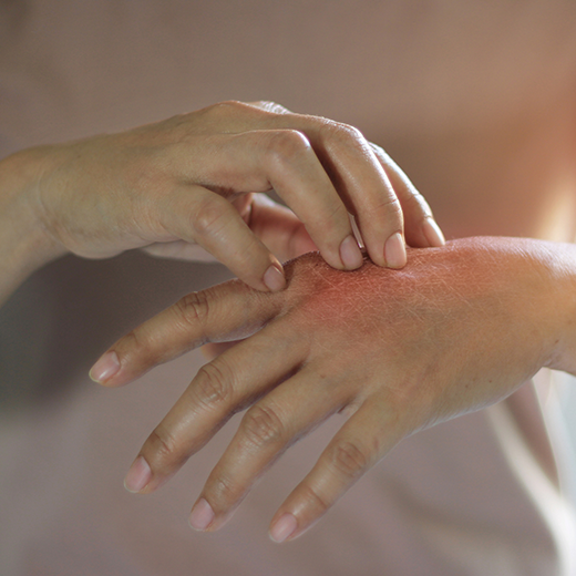 Ways to Reduce Itching Caused by Eczema