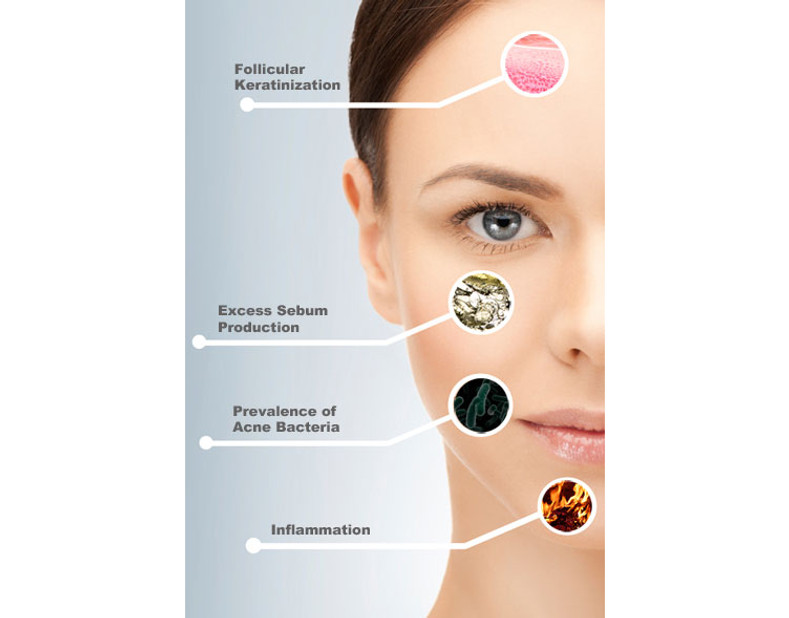 The Four Main Causes of Acne