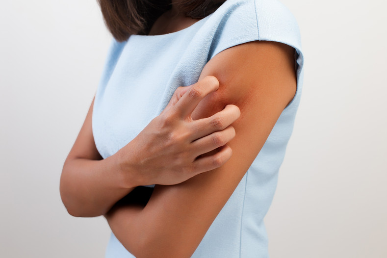 How to Calm An Eczema Flare Up
