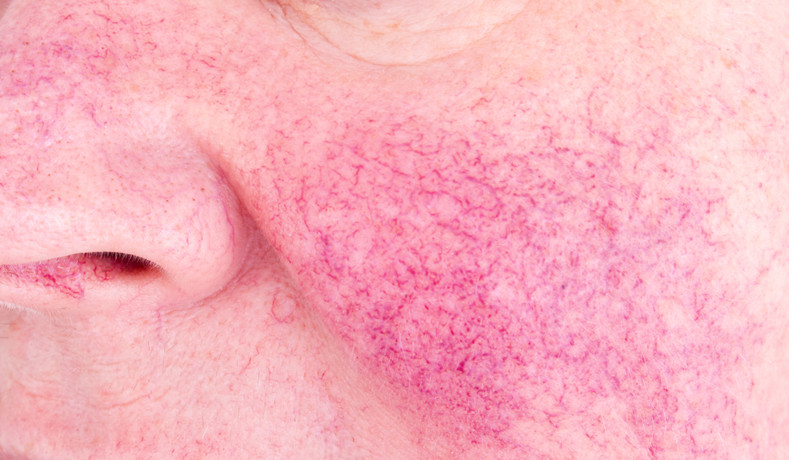 Rosacea Symptoms and How to Minimize Them