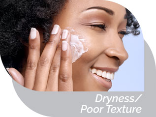 Dryness/Poor Texture