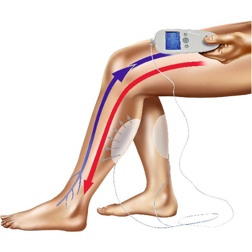 Veinoplus® Electro-Stimulation Device