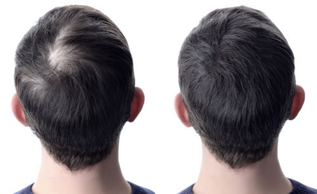 GroBro Worlds #1 Hair Loss Treatment