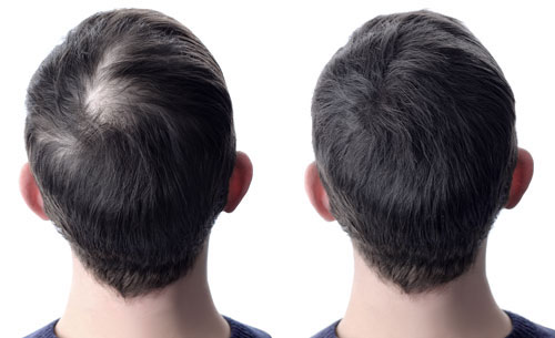Money Back Guarantee From The 1 Natural Product For Male Hair Support And Hair Growth 1 Month Supply Grobro 4 Oz All Natural Hair Growth Solution Jas Co Inc Has Combined Natures Best And