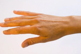The Different Types of Eczema
