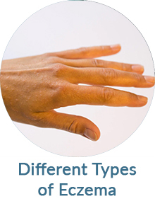 Different Types of Eczema Blog