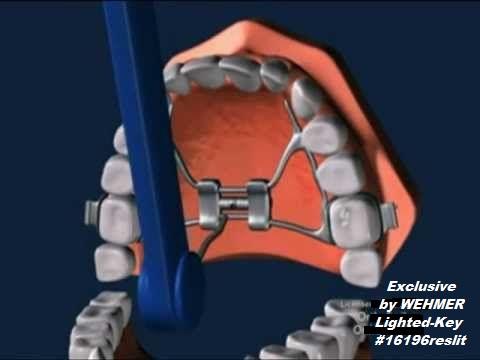 safety-key-inside-mouth.jpg
